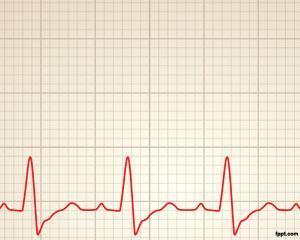 Plantilla PPT de Ritmo Cardiaco PPT Template